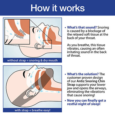 Stop Snoring Chin Strap